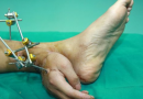 Pioneering surgery: hand sewn to ankle
